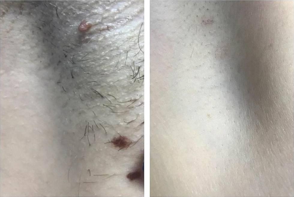 Картинки после операции папиллом лазером